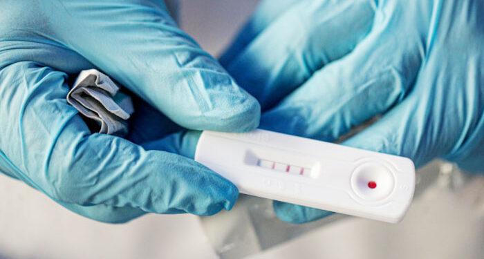 Σημεία δειγματοληψίας με rapid test – 4 Απριλίου 2021